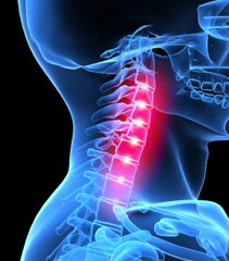 Effects Of Whiplash - Car Accidents And More