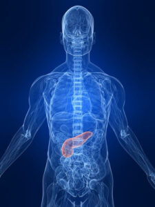 Pancreas Transplant - Types And Rising Demand In India